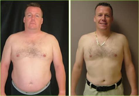 Daniel: 50 lb. Weight Loss - Dr. Kerendian patient review