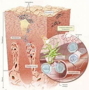 Применение метотрексата при псориазе