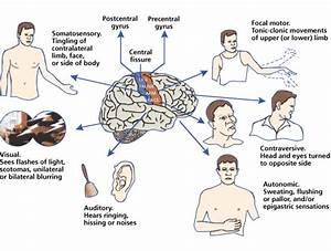 Partial Seizures - Epilepsy. Causes, symptoms, treatment ...