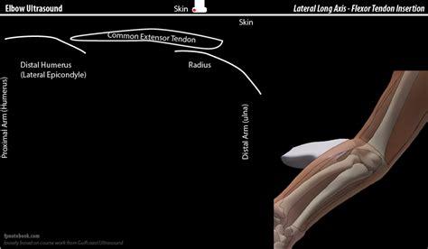 Elbow Ultrasound