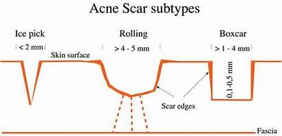 Acne Scars Types Skin Different Treatment Rid