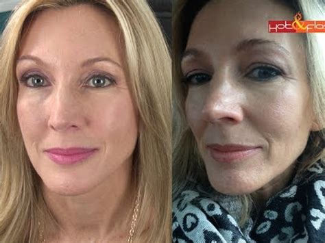 My Experience With Botox & Filler (Juvederm) - YouTube