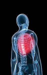 Douleur Milieu Dos Cancer : la douleur thoracique et intercostale blog du dr sylvain houle chiropraticien ~ Medecine-chirurgie-esthetiques.com Avis de Voitures
