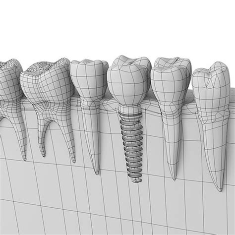dental implant  model obj ds fbx blend cgtradercom