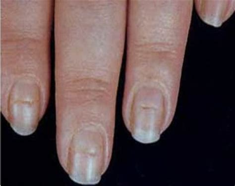 koilonychia | Medical Pictures Info - Health Definitions