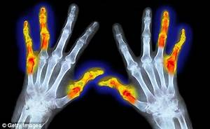 Arthritis: Why lack of sleep may trigger arthritis - but ...