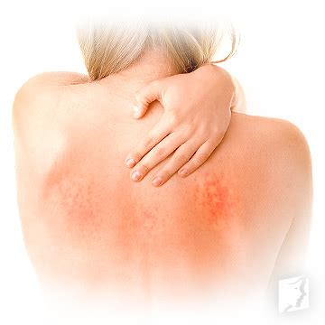 Symptoms of Itchy Skin | Menopause Now
