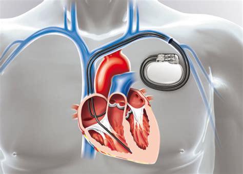 pose d une chambre implantable pose d un pacemaker ramsay générale de santé nos offres