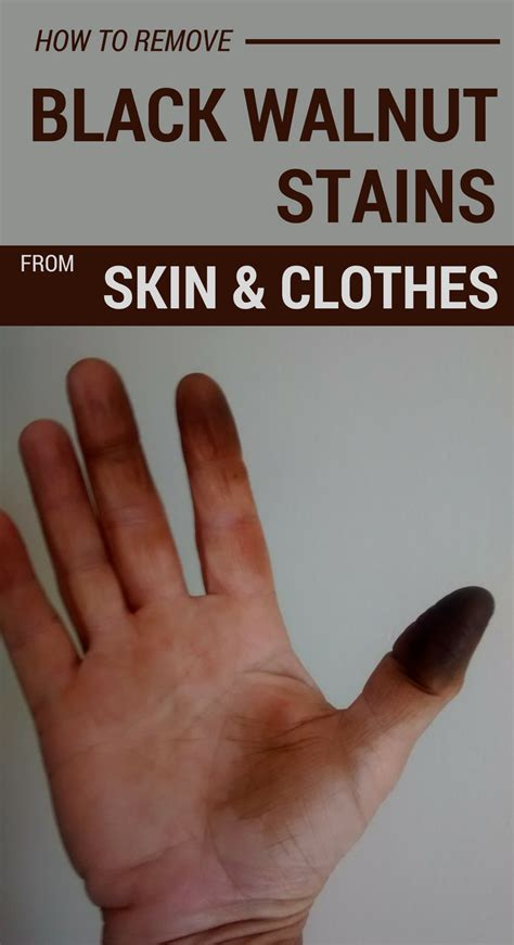 remove black walnut stains  skin  clothes