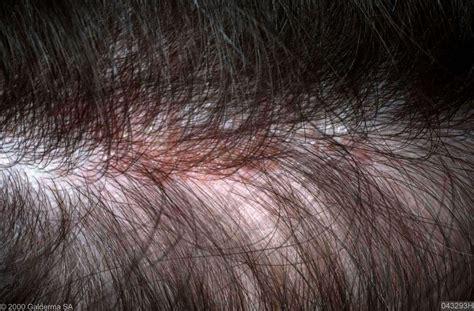 rode vlekken op hoofd