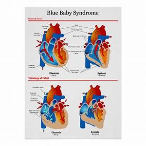 Anatomical Heart Diagram Of Blue Baby Syndrome Poster