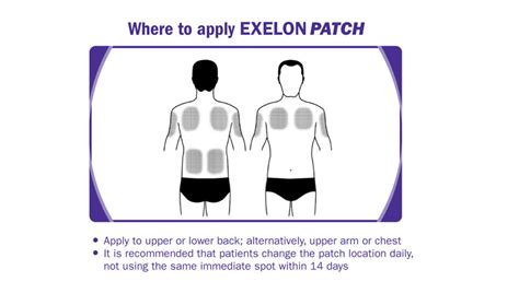 New Exelon®Patch - Now Available in 2 Strengths from ...