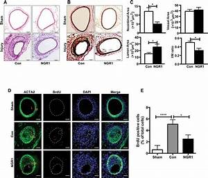 Ngr1 Attenuated Neointima Formation In A Murine Femoral