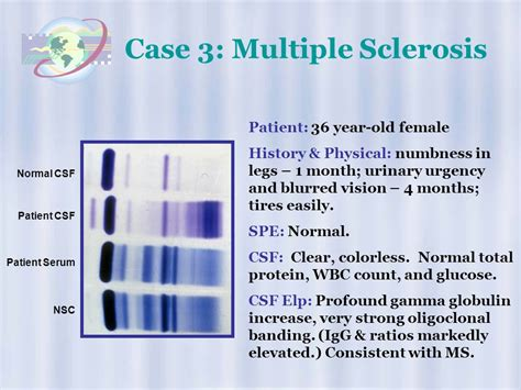 High Resolution Protein Electrophoresis  Ppt Video Online. Emergency Plumbing Houston Jaflo Tree Service. Alpharadin Prostate Cancer Sea Doo Insurance. Accelerated Nursing Programs In North Carolina. Texas Tech Medical Center Duct Cleaning Cost. Top Real Estate Lead Generation Companies. Convert Ms Access To Web Laser Lipo Procedure. Temporary Disability Benefits Ny. Sage Document Management Standard Auto Policy