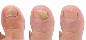 Дешевая мазь от грибка ногтей на ногах самая хорошая