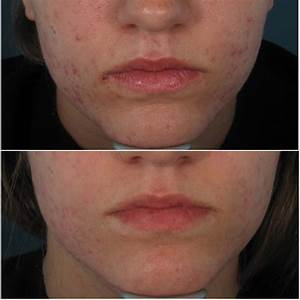 Enlarged Pores And Acne