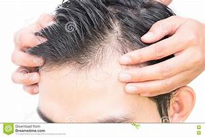 Hair Loss Concept Royalty Free Stock Photography