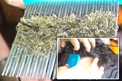 skin crawling footage   worst head lice infestation