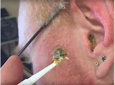 Best earwax removal videos INSIDER