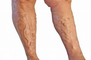 Рожистое воспаление ноги симптомы и лечение при сахарном диабете
