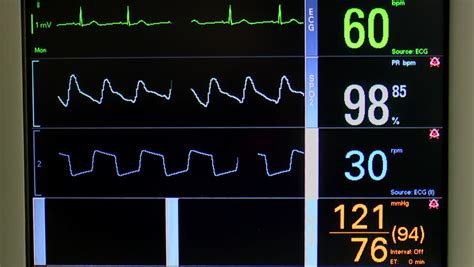 Vital Signs Monitor Displays ECG Or EKG, Oxygen Saturation