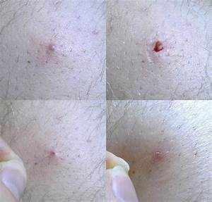 Ingrown Pubic Hair - Get Rid Of It Now! - MediMiss
