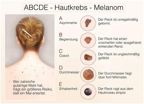 schwarzer hautkrebs malignes melanom mylife