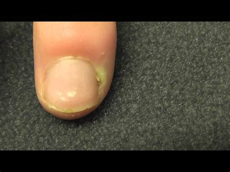 sore nail beds a finger infection near the nail bed or paronychia as it