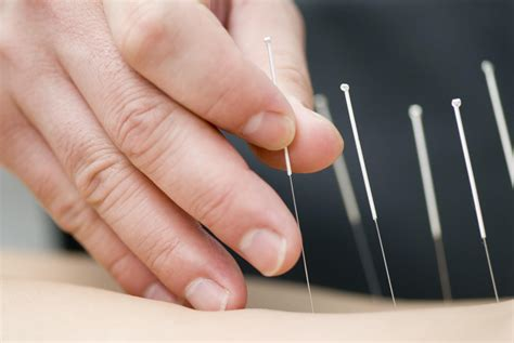 acupuncture offer pain relief  reduce opioid
