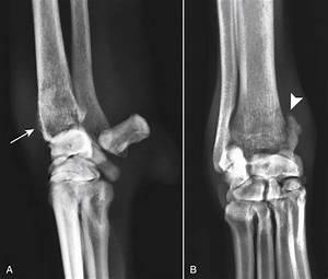 Blastomycosis In Dogs Blastomycosis Veterian Key