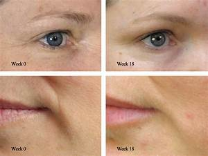 DermaRoller Collagen Induction Therapy The Green Room