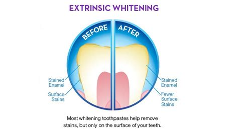 tooth whitening toothpaste teeth whitening dublin