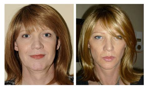 Facial Exercise Before and After - Facial Exercise Central