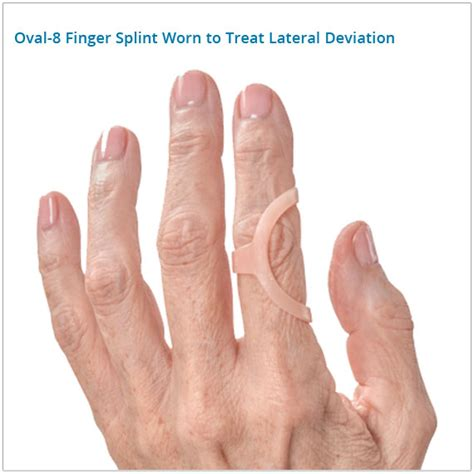 Mallet Finger Splint Walgreens