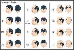 Norwood Hair Loss Chart