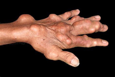 gout anatomybox