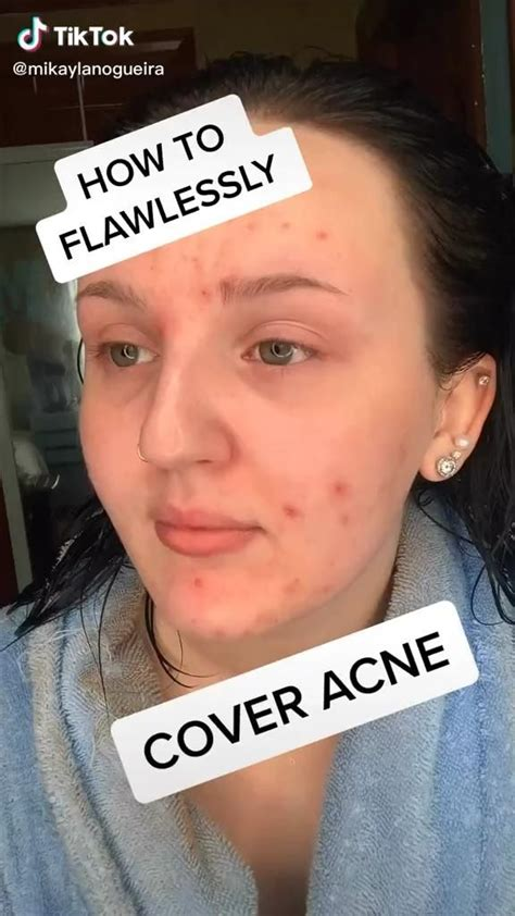 cover acne video natural makeup acne makeup