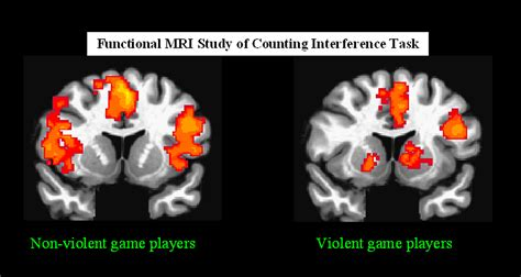 rsna press release violent video games leave teenagers