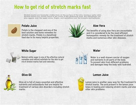 does losing weight get rid stretch marks