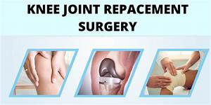 A Basic Guide On Knee Joint Replacement Surgery You Must