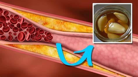 triglycerides naturally  effective ways