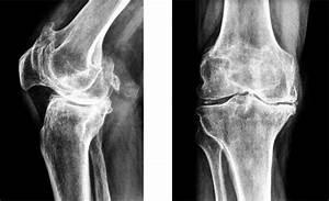 Артроз коленного сустава от чего возникает