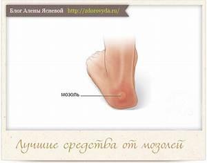 Удаление бородавки на пальце ноги