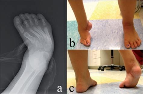 Club foot (also called talipes) is a birth defect that can affect one or both feet. A five-year-old child with recurrent right clubfoot, de ...
