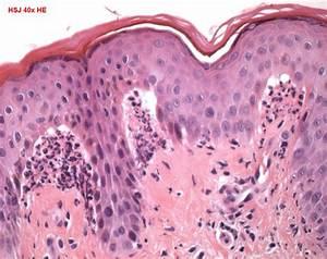 dermatitis herpetiformis humpath human pathology