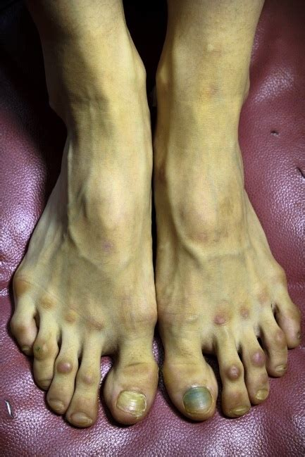 feet   female ballet dancer wtf