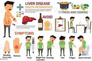 Liver Disease Due To Alcohol Symptoms