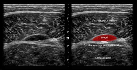 Ultrasound Case 096 • LITFL • POCUS Self-Assessment Quiz