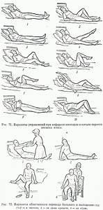 Лечение 1 стадии гипертонической болезни