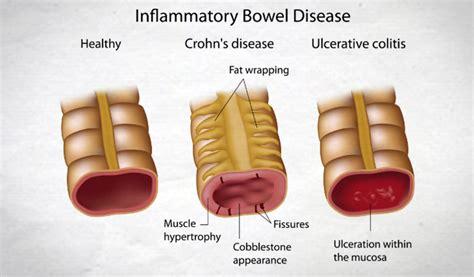 Inflammatory Bowel Disease (IBD) - Crohn's and Colitis